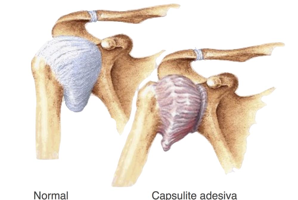 Capsulite Adesiva do Ombro (CAO)