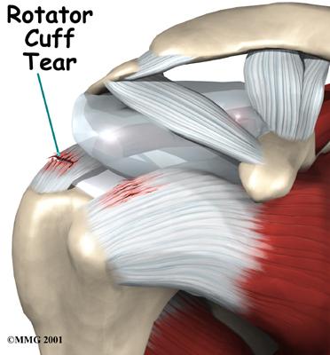 Lesões do Manguito Rotador do Ombro (LMR)