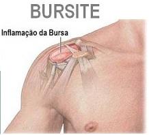 Bursite