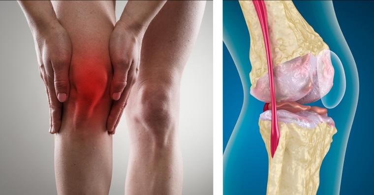 como-identificar-e-tratar-a-artrose-no-joelho-facebook