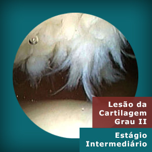 lesao-cartilagem2-estagio-intermediario
