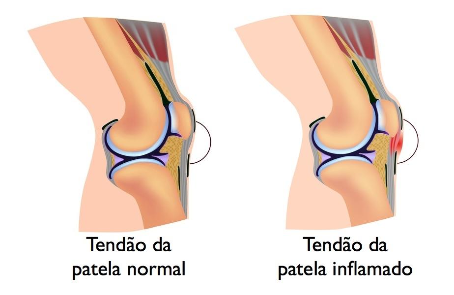 Tendinite-Patelar-ou-tendinite-no-joelho