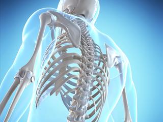 Fratura de Vértebras