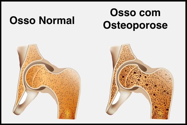 entenda-o-que-e-osteoporose-e-suas-causas-1-1-640-427
