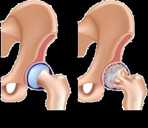 osteoartrose+quadril