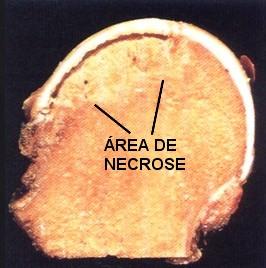 osteonecrose-3