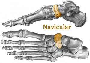Navicular