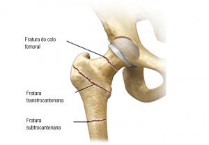 Fratura-do-fêmur-proximal-fratura-do-colo-femoral-fratura-transtrocanteriana-fratura-subtrocanteriana-fratura-do-quadril