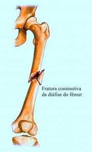 fratura-diáfise-do-fémur