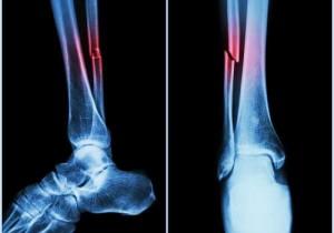 quando-um-osso-quebra-se-temos-um-caso-fratura-57d7dd8e58332