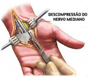 cirurgia-acerta-sindrome-tunel-carpo