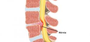 hernia-de-disco-diagnostico-e-tratamento-11102017171425
