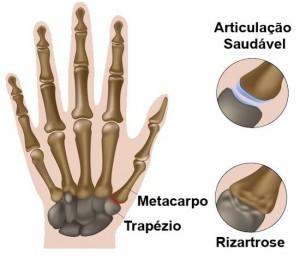 Rizartrose - Artrose do Polegar