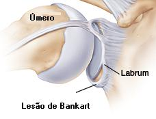 bony structures of the shoulder showing SLAP lesion and Bankart lesion