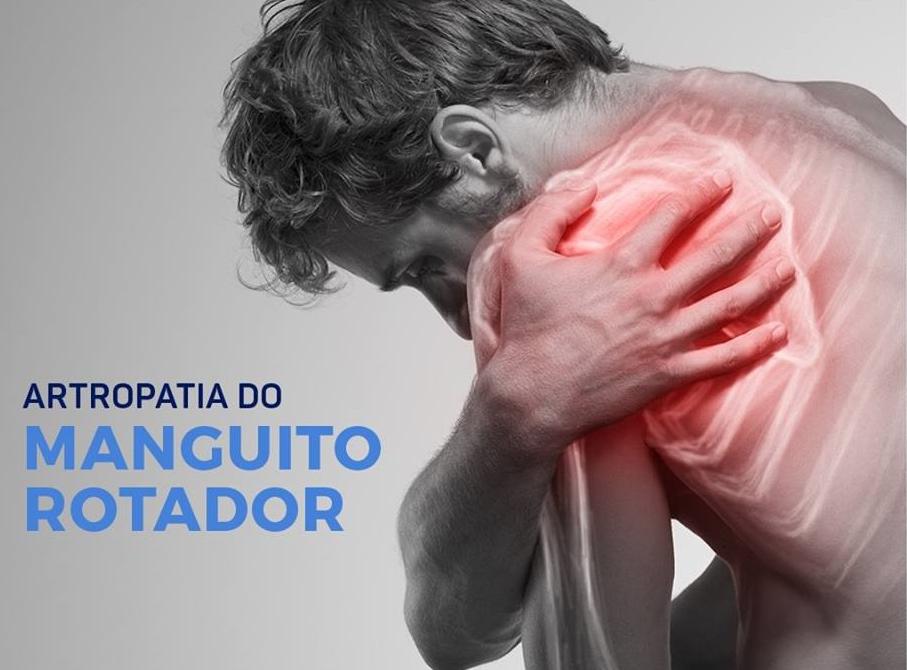 Artropatia do Manguito Rotador
