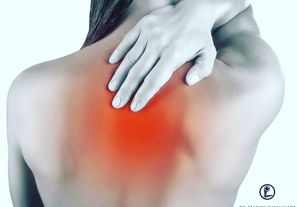 Síndrome Miofascial – Mialgia do Trapézio