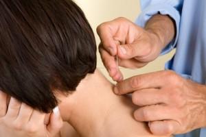 miofascial-acupuntura
