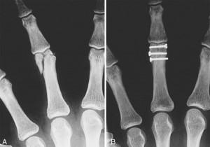 fratura-de-falange-proximal-3dedo-fixado-com-parafuso