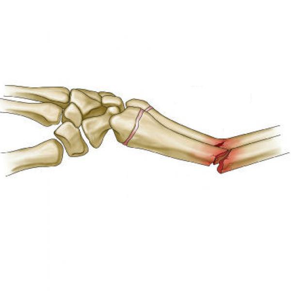 Fratura do Antebraço e Cotovelo I